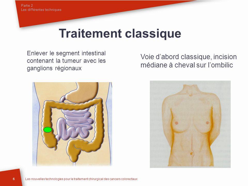 Partie 2 Les différentes techniques 6Les nouvelles technologies pour le traitement chirurgical des cancers colorectaux Traitement classique Voie dabor