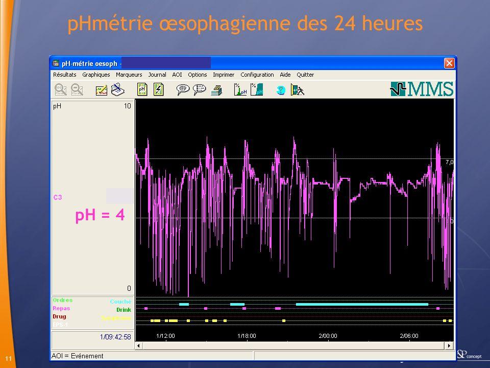 11 pHmétrie œsophagienne des 24 heures pH = 4
