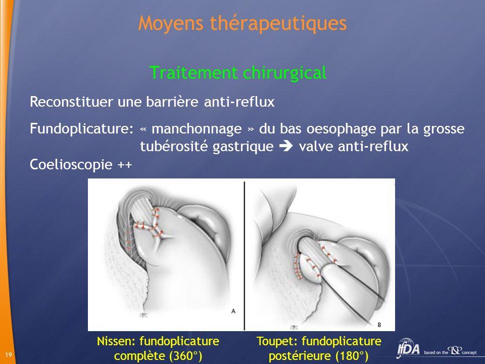 19 Moyens thérapeutiques Traitement chirurgical Nissen: fundoplicature complète (360°) Toupet: fundoplicature postérieure (180°) Reconstituer une barr