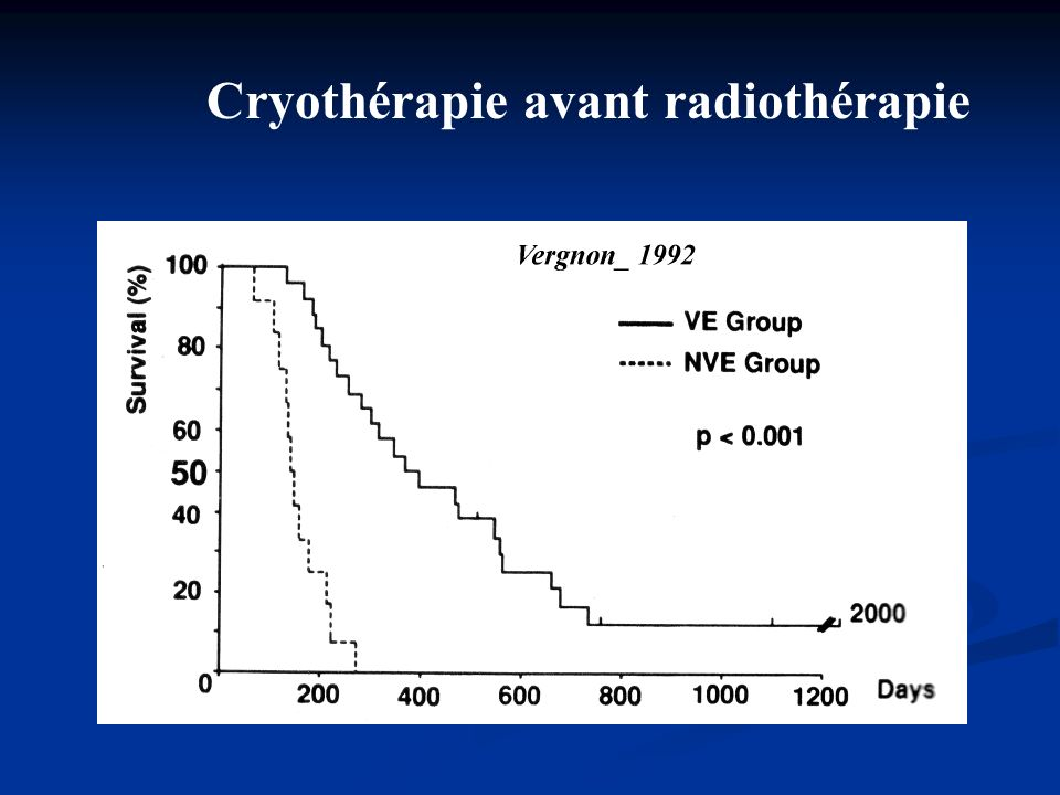 Cryothérapie avant radiothérapie