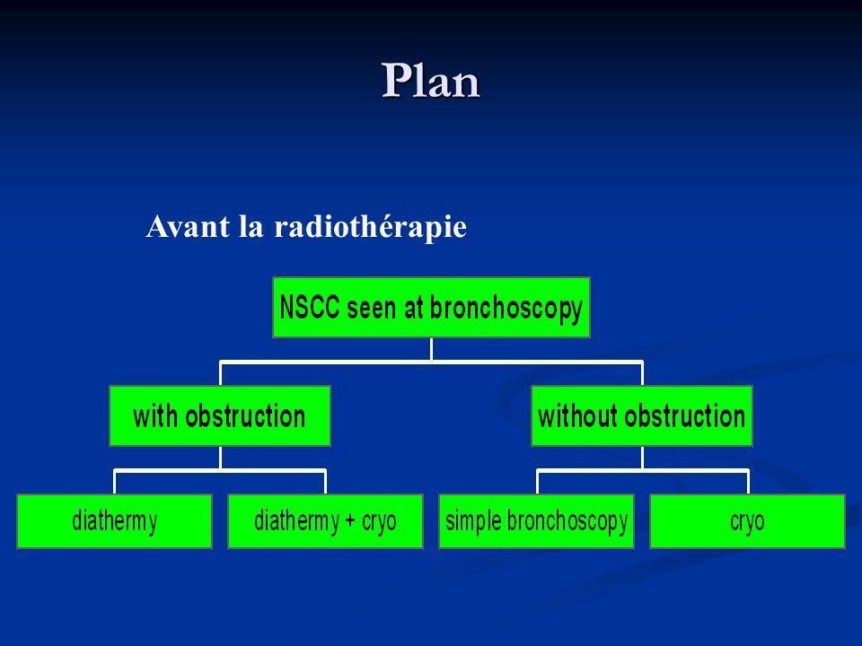 Plan Avant la radiothérapie