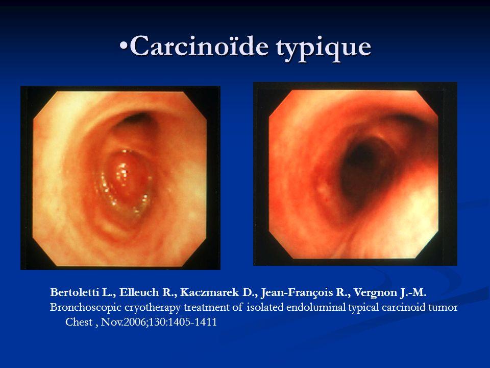 Carcinoïde typiqueCarcinoïde typique Bertoletti L., Elleuch R., Kaczmarek D., Jean-François R., Vergnon J.-M. Bronchoscopic cryotherapy treatment of i