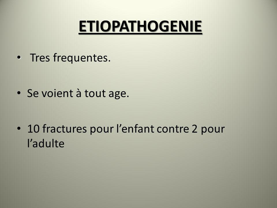 ETIOPATHOGENIE Tres frequentes. Se voient à tout age. 10 fractures pour lenfant contre 2 pour ladulte