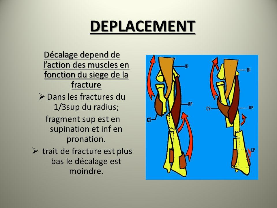 DEPLACEMENT Décalage depend de laction des muscles en fonction du siege de la fracture Dans les fractures du 1/3sup du radius; fragment sup est en sup