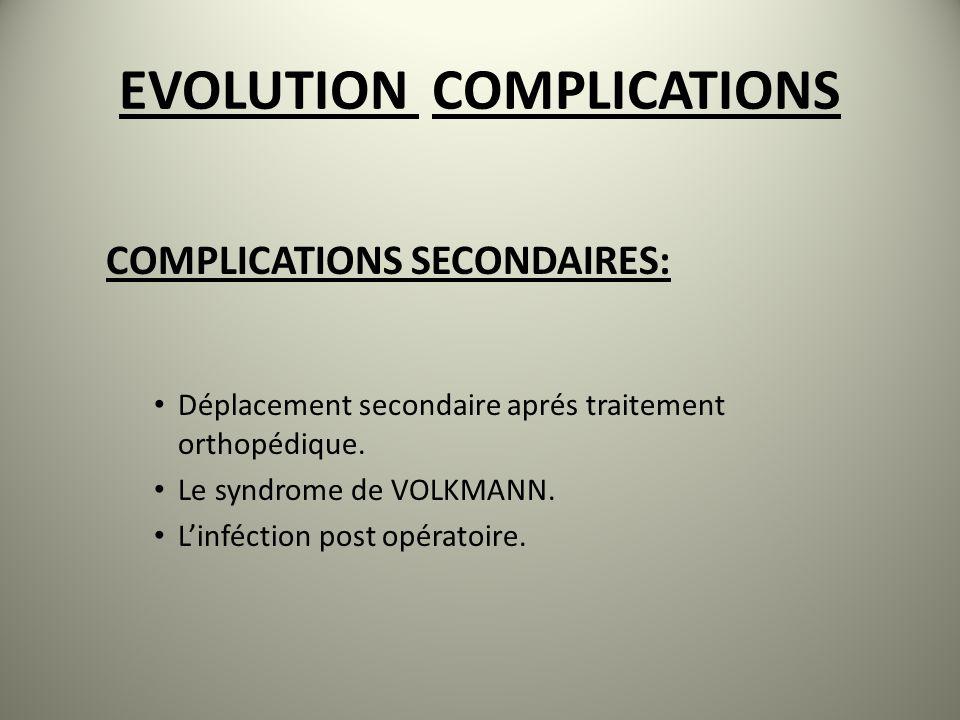 EVOLUTION COMPLICATIONS COMPLICATIONS SECONDAIRES: Déplacement secondaire aprés traitement orthopédique. Le syndrome de VOLKMANN. Linféction post opér