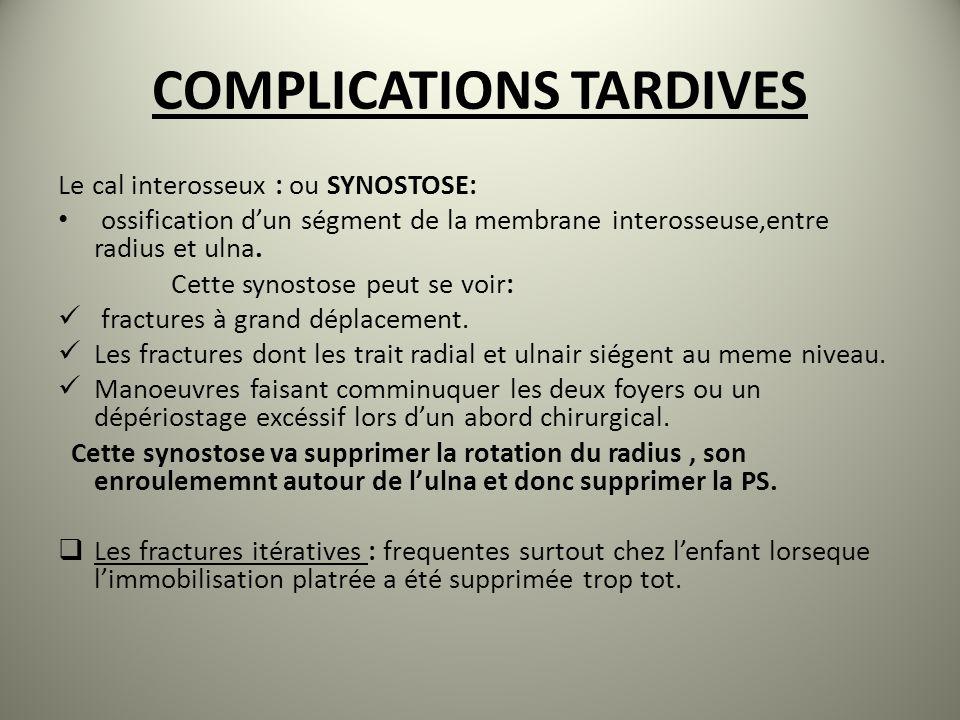 COMPLICATIONS TARDIVES Le cal interosseux : ou SYNOSTOSE: ossification dun ségment de la membrane interosseuse,entre radius et ulna.