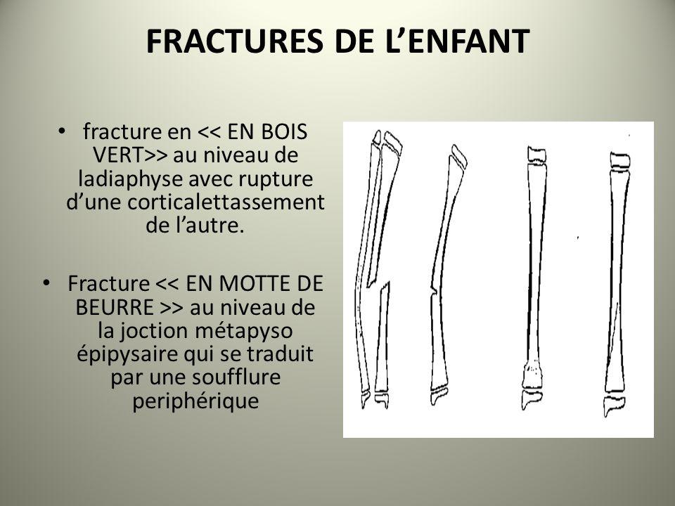 FRACTURES DE LENFANT fracture en > au niveau de ladiaphyse avec rupture dune corticalettassement de lautre. Fracture > au niveau de la joction métapys