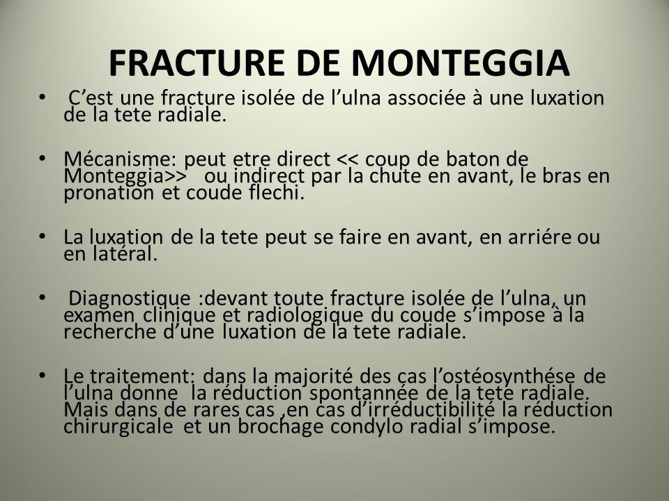 FRACTURE DE MONTEGGIA Cest une fracture isolée de lulna associée à une luxation de la tete radiale. Mécanisme: peut etre direct > ou indirect par la c