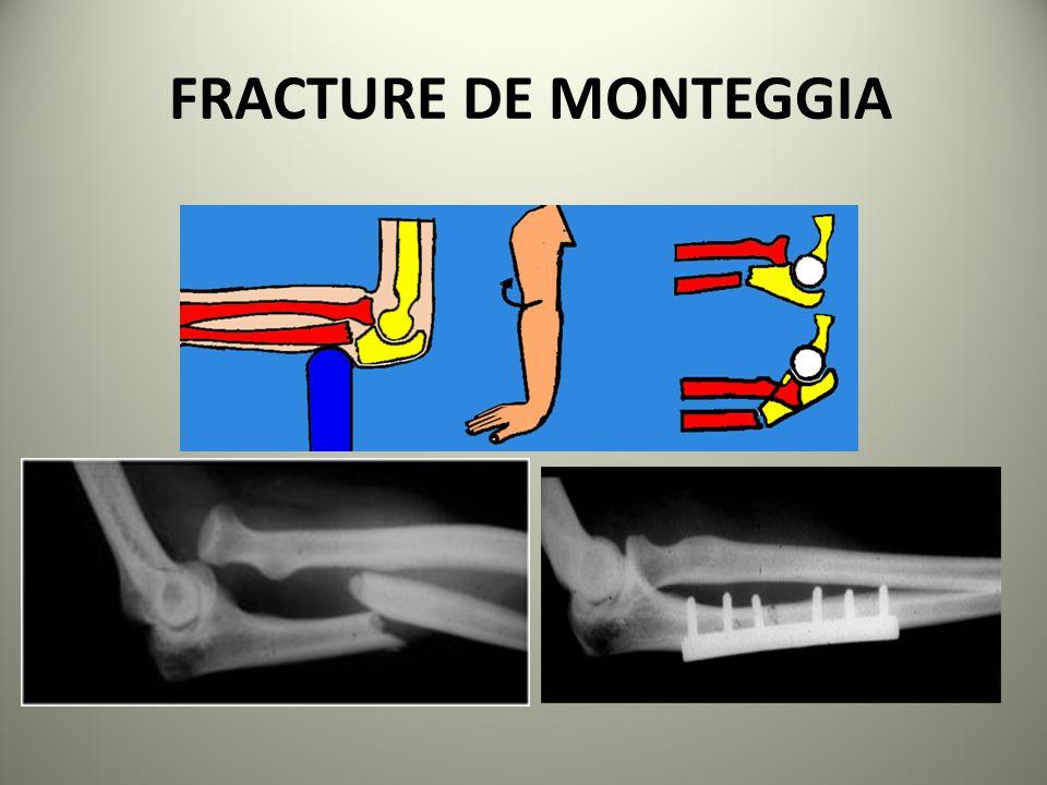 FRACTURE DE MONTEGGIA