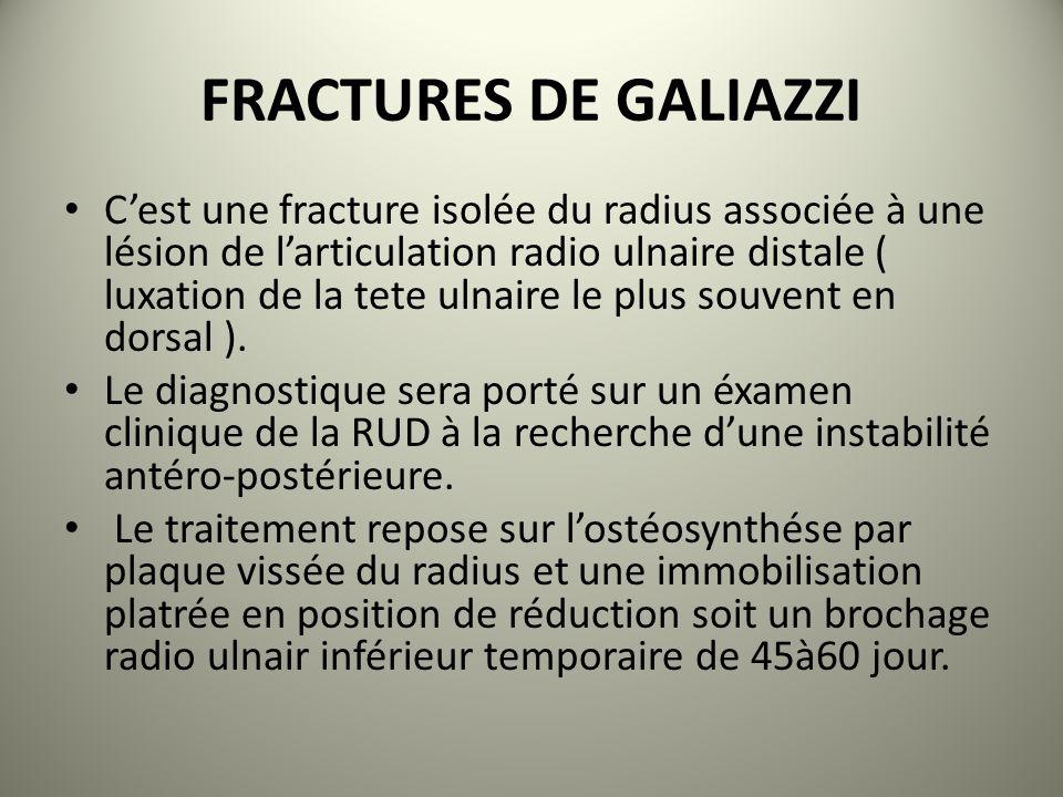FRACTURES DE GALIAZZI Cest une fracture isolée du radius associée à une lésion de larticulation radio ulnaire distale ( luxation de la tete ulnaire le