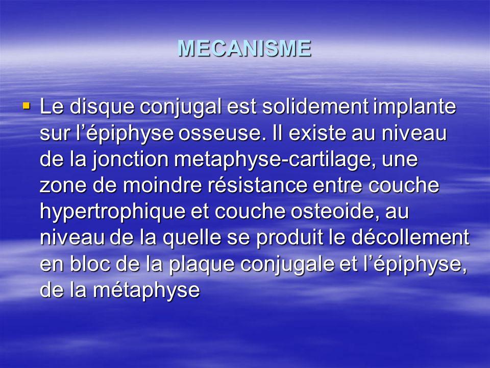MECANISME Le disque conjugal est solidement implante sur lépiphyse osseuse. Il existe au niveau de la jonction metaphyse-cartilage, une zone de moindr