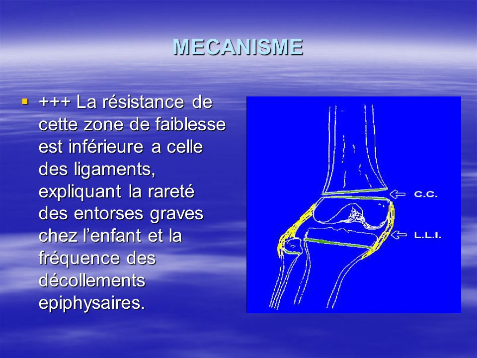 MECANISME +++ La résistance de cette zone de faiblesse est inférieure a celle des ligaments, expliquant la rareté des entorses graves chez lenfant et