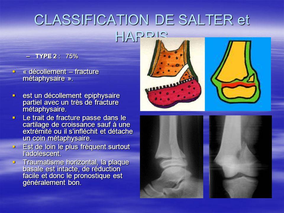 CLASSIFICATION DE SALTER et HARRIS –TYPE 2 : 75% « décollement – fracture métaphysaire ». « décollement – fracture métaphysaire ». est un décollement