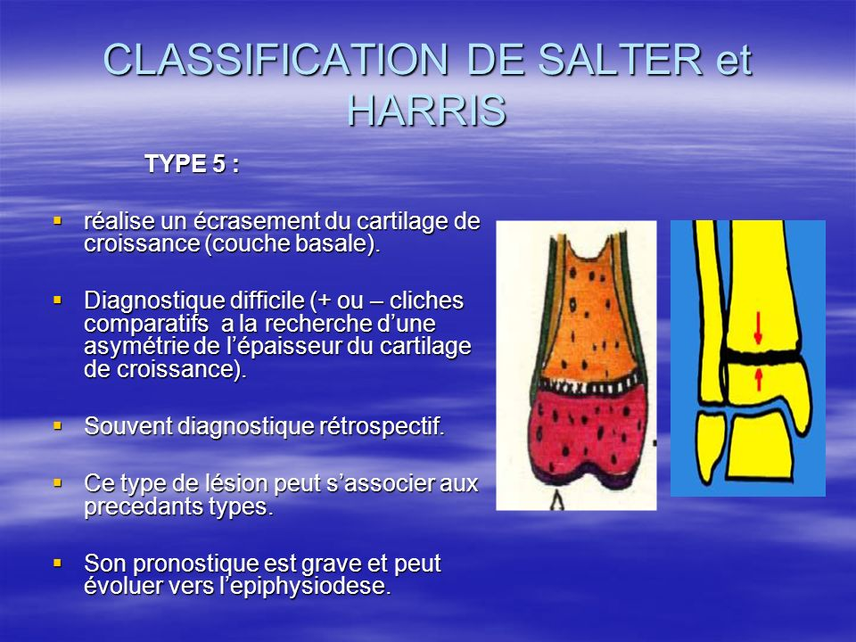 CLASSIFICATION DE SALTER et HARRIS TYPE 5 : TYPE 5 : réalise un écrasement du cartilage de croissance (couche basale). réalise un écrasement du cartil