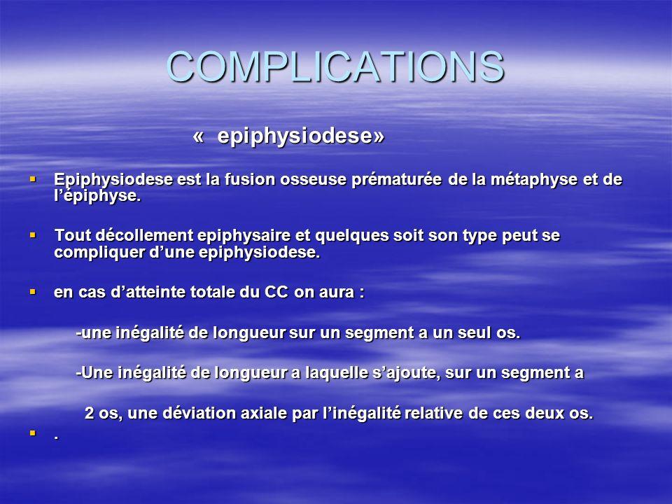 COMPLICATIONS « epiphysiodese» « epiphysiodese» Epiphysiodese est la fusion osseuse prématurée de la métaphyse et de lépiphyse. Epiphysiodese est la f