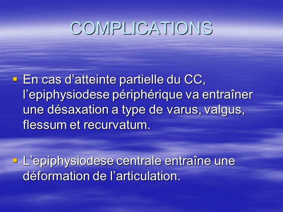 COMPLICATIONS En cas datteinte partielle du CC, lepiphysiodese périphérique va entraîner une désaxation a type de varus, valgus, flessum et recurvatum