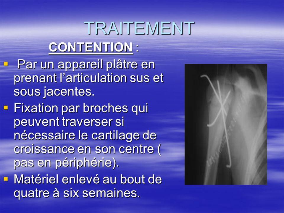 TRAITEMENT CONTENTION : CONTENTION : Par un appareil plâtre en prenant larticulation sus et sous jacentes. Par un appareil plâtre en prenant larticula