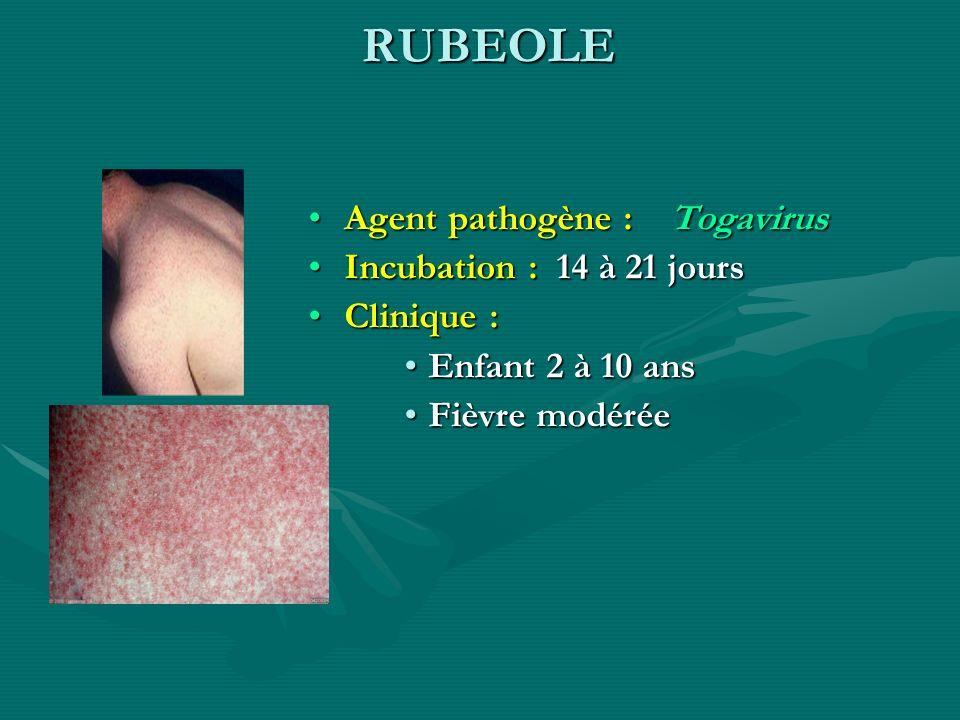 RUBEOLE Agent pathogène : Togavirus Incubation : 14 à 21 jours Clinique : Enfant 2 à 10 ans Fièvre modérée
