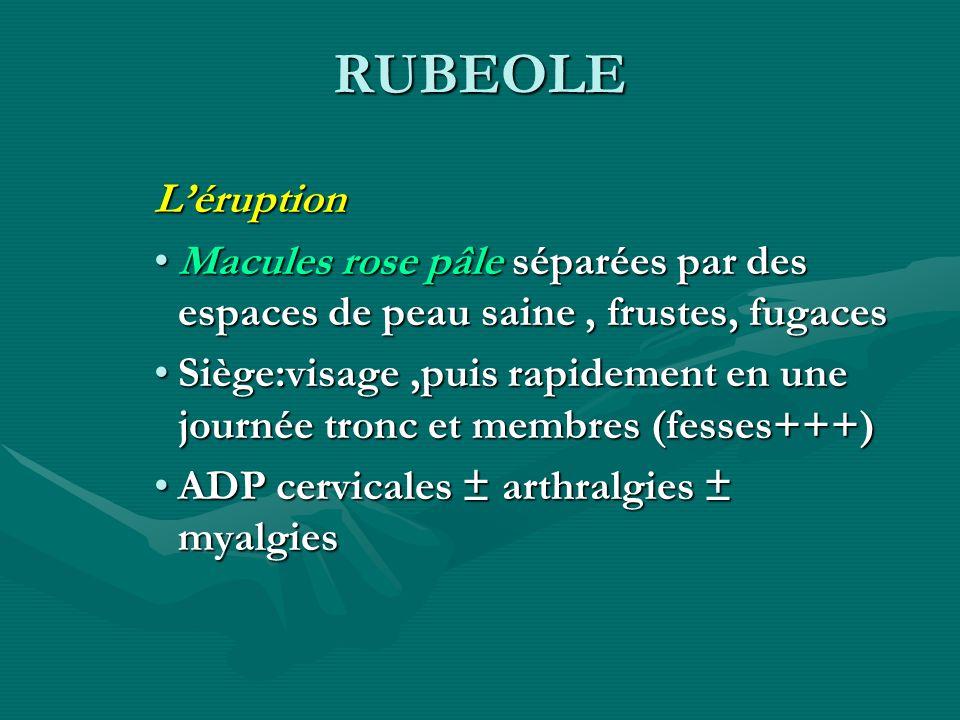 RUBEOLE Léruption Macules rose pâle séparées par des espaces de peau saine, frustes, fugacesMacules rose pâle séparées par des espaces de peau saine,