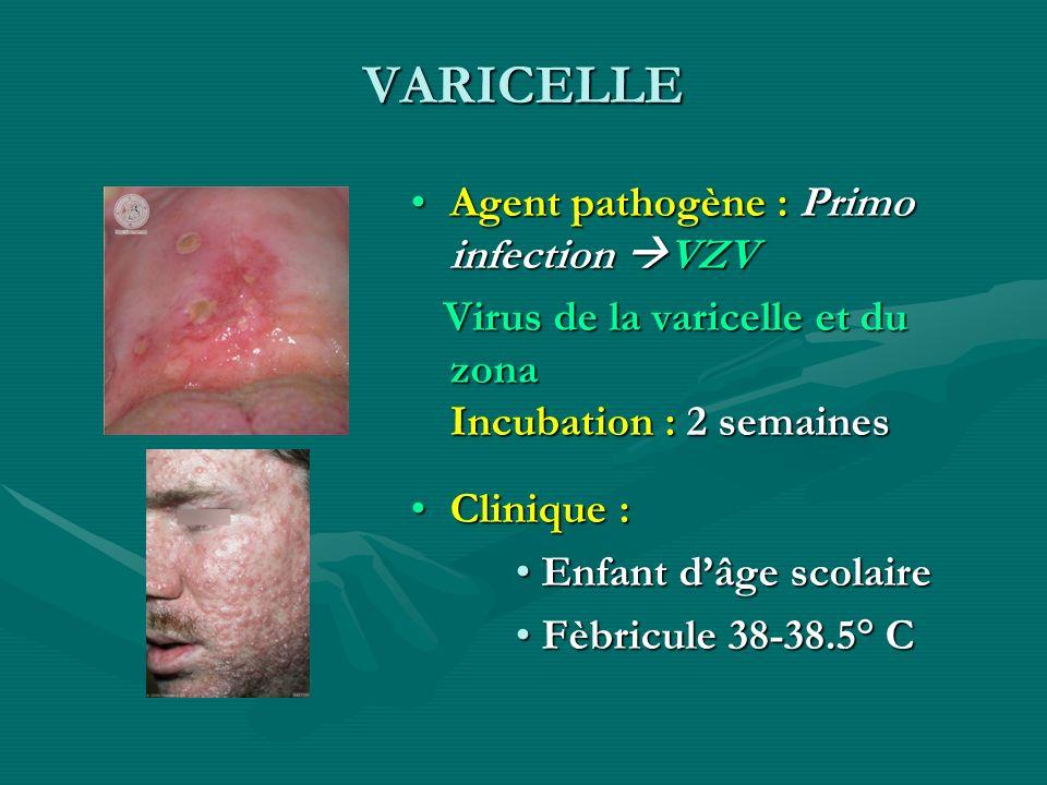 VARICELLE Agent pathogène : Primo infection VZV Virus de la varicelle et du zona Incubation : 2 semaines Clinique : Enfant dâge scolaire Fèbricule 38-