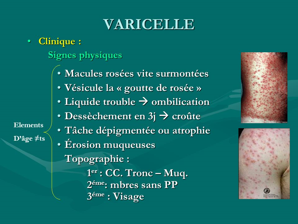 VARICELLE Clinique: Signe fonctionnel Prurit Evolution : Bénigne chez lenfant Surinfection Pneumopathie varicelleuse Manif neuro : attention au syndrome de Reye