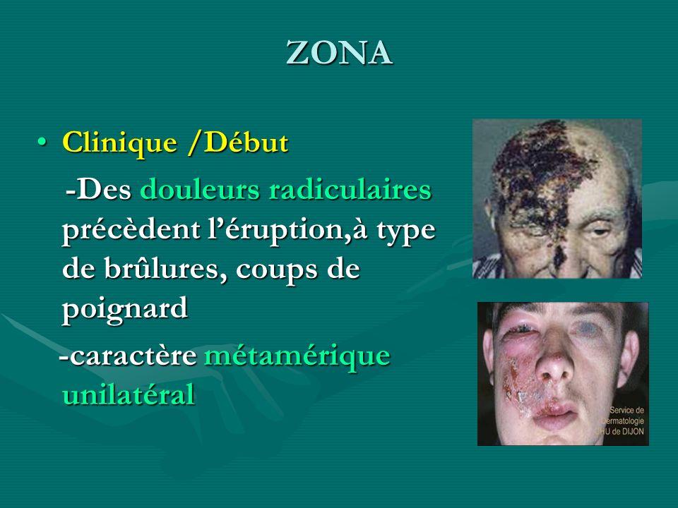 ZONA Clinique /DébutClinique /Début -Des douleurs radiculaires précèdent léruption,à type de brûlures, coups de poignard -Des douleurs radiculaires pr