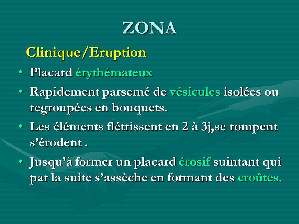 ZONA Clinique/Eruption Clinique/Eruption Placard érythémateuxPlacard érythémateux Rapidement parsemé de vésicules isolées ou regroupées en bouquets.Ra