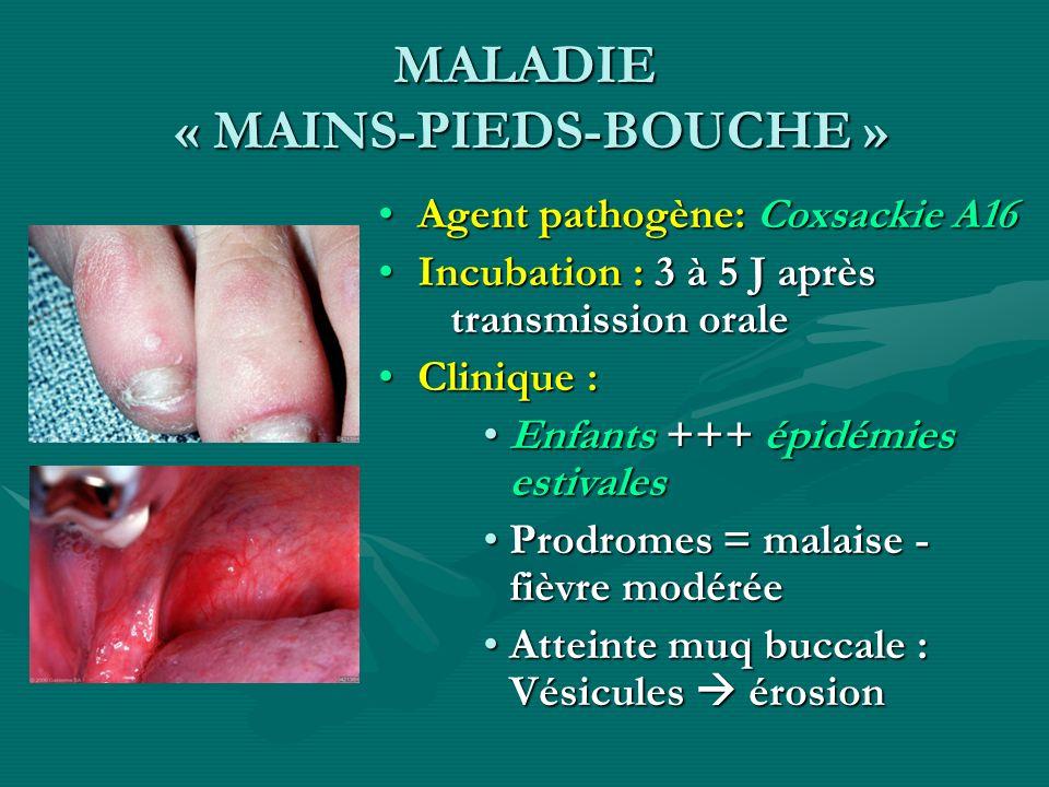 MALADIE « MAINS-PIEDS-BOUCHE » Agent pathogène: Coxsackie A16 Incubation : 3 à 5 J après transmission orale Clinique : Enfants +++ épidémies estivales