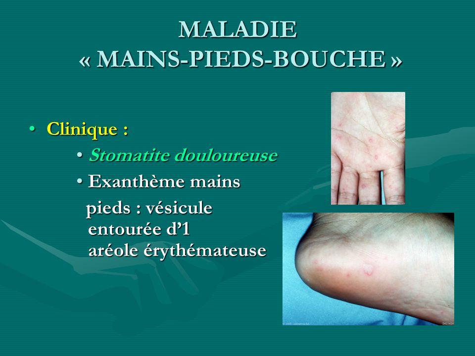 MALADIE « MAINS-PIEDS-BOUCHE » Clinique :Clinique : Stomatite douloureuseStomatite douloureuse Exanthème mainsExanthème mains pieds : vésicule entouré