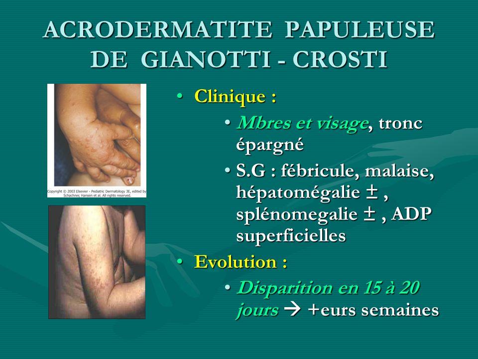 ACRODERMATITE PAPULEUSE DE GIANOTTI - CROSTI Clinique : Mbres et visage, tronc épargné S.G : fébricule, malaise, hépatomégalie ±, splénomegalie ±, ADP