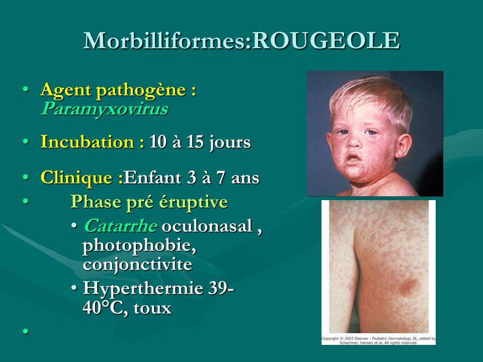Morbilliformes:ROUGEOLE Agent pathogène : ParamyxovirusAgent pathogène : Paramyxovirus Incubation : 10 à 15 joursIncubation : 10 à 15 jours Clinique :