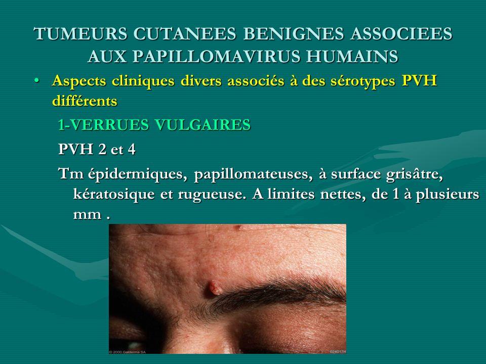 TUMEURS CUTANEES BENIGNES ASSOCIEES AUX PAPILLOMAVIRUS HUMAINS Aspects cliniques divers associés à des sérotypes PVH différents 1-VERRUES VULGAIRES PV