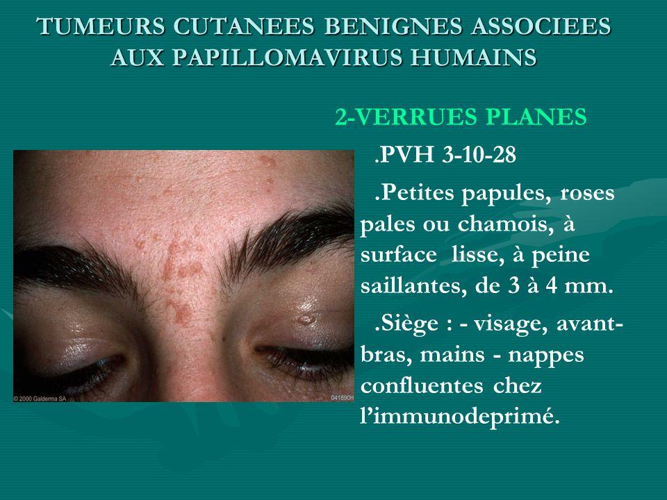 TUMEURS CUTANEES BENIGNES ASSOCIEES AUX PAPILLOMAVIRUS HUMAINS 2-VERRUES PLANES. PVH 3-10-28.Petites papules, roses pales ou chamois, à surface lisse,