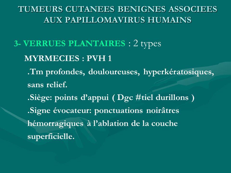 TUMEURS CUTANEES BENIGNES ASSOCIEES AUX PAPILLOMAVIRUS HUMAINS 3- VERRUES PLANTAIRES : 2 types MYRMECIES : PVH 1.Tm profondes, douloureuses, hyperkéra