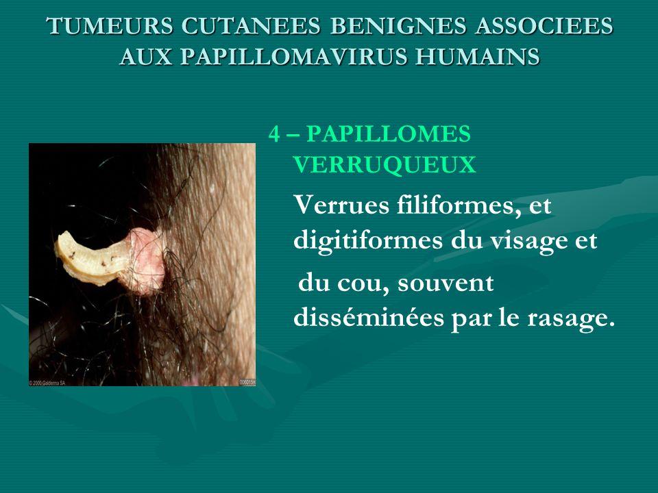 TUMEURS CUTANEES BENIGNES ASSOCIEES AUX PAPILLOMAVIRUS HUMAINS 4 – PAPILLOMES VERRUQUEUX Verrues filiformes, et digitiformes du visage et du cou, souv