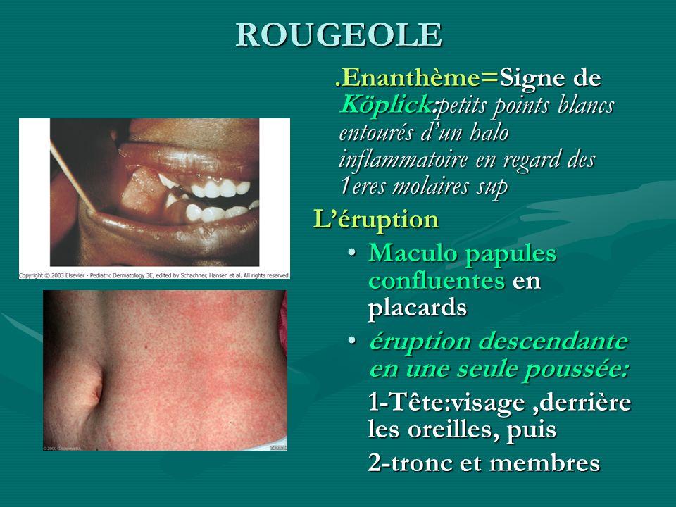 ROUGEOLE.Enanthème=Signe de Köplick:petits points blancs entourés dun halo inflammatoire en regard des 1eres molaires sup Léruption Maculo papules con