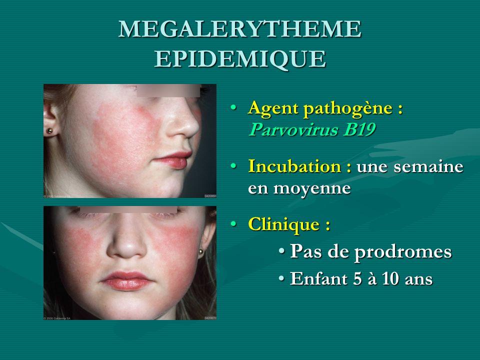 MEGALERYTHEME EPIDEMIQUE Agent pathogène : Parvovirus B19 Incubation : une semaine en moyenne Clinique : Pas de prodromes Enfant 5 à 10 ans