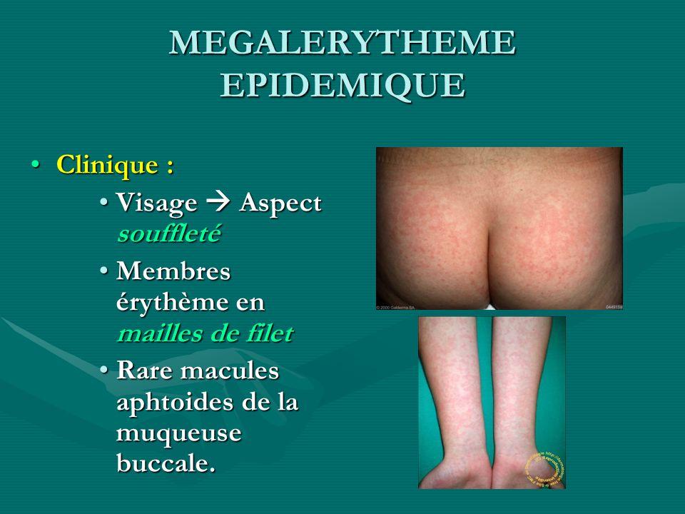MEGALERYTHEME EPIDEMIQUE Clinique :Clinique : Visage Aspect souffletéVisage Aspect souffleté Membres érythème en mailles de filetMembres érythème en m