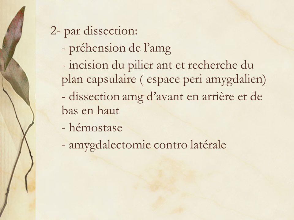 2- par dissection: - préhension de lamg - incision du pilier ant et recherche du plan capsulaire ( espace peri amygdalien) - dissection amg davant en
