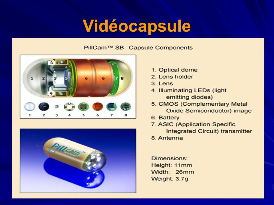 Vidéocapsule