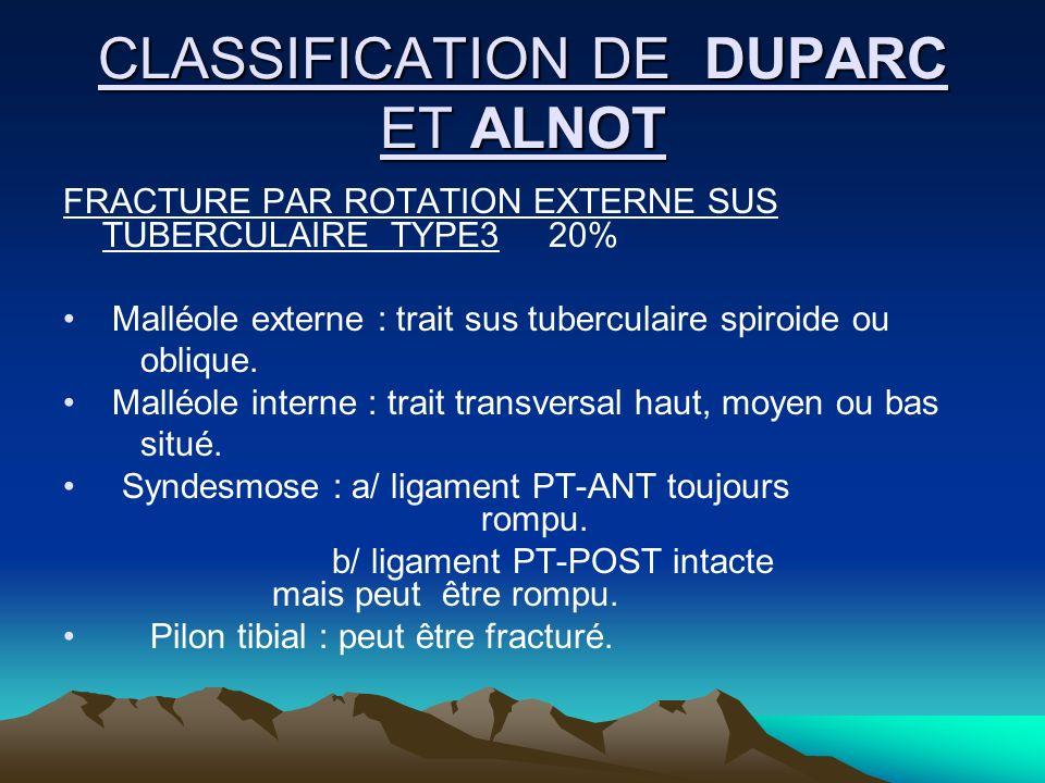 CLASSIFICATION DE DUPARC ET ALNOT FRACTURE PAR ROTATION EXTERNE SUS TUBERCULAIRE TYPE3 20% Malléole externe : trait sus tuberculaire spiroide ou obliq