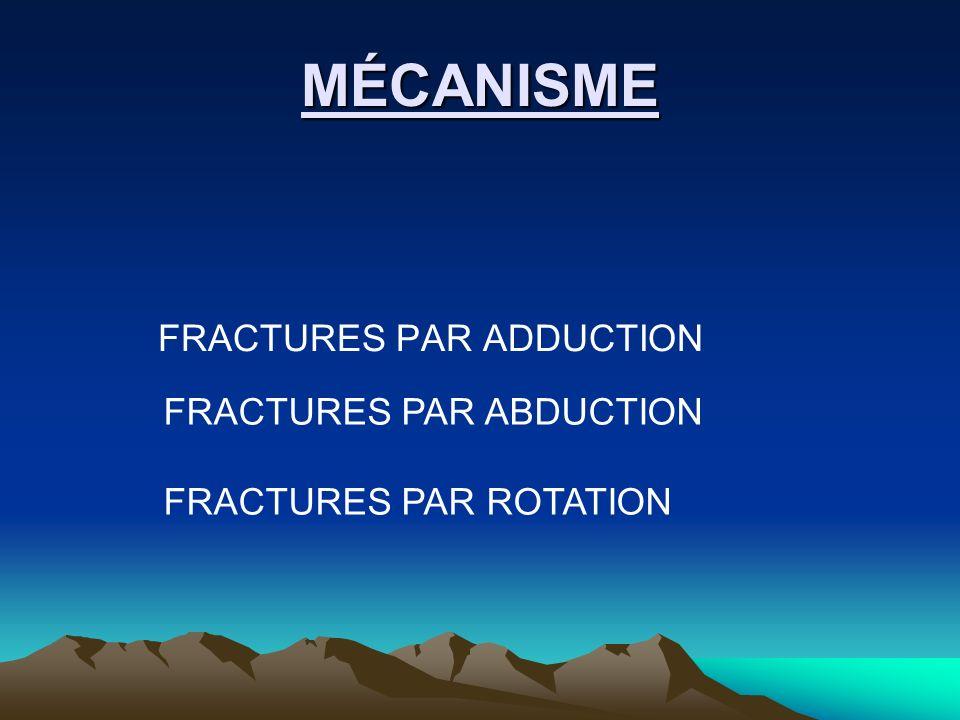 MÉCANISME FRACTURES PAR ADDUCTION FRACTURES PAR ABDUCTION FRACTURES PAR ROTATION
