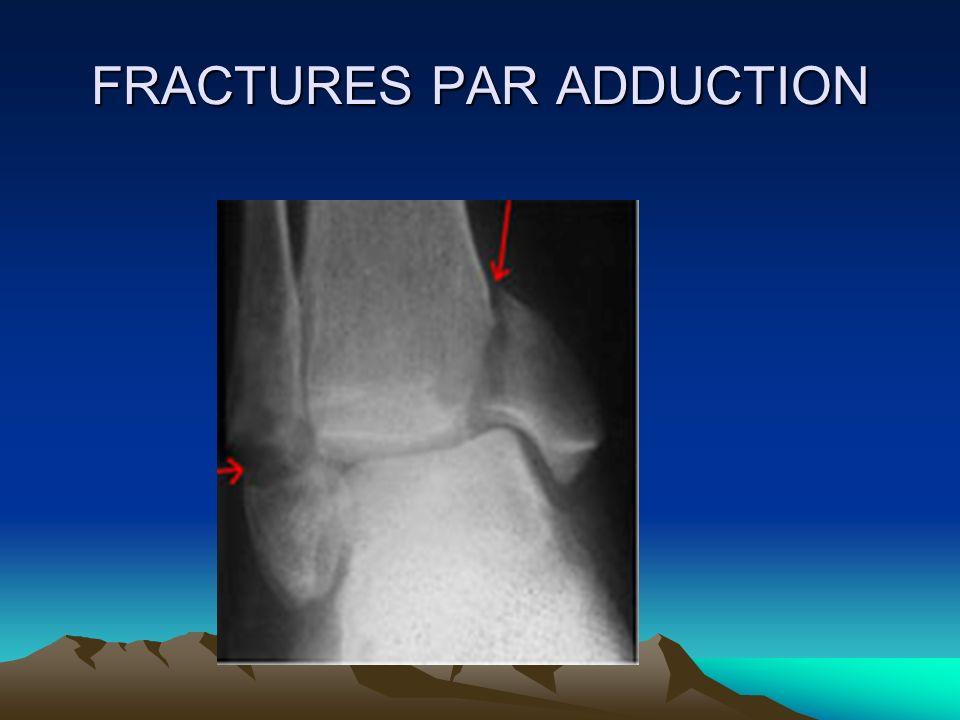TRAITEMENT ostéosynthèse du péroné ostéosynthèse du péroné : doit être réparer le 1er, réduction anatomique fixation par plaque vissée, haubanage armé,vis perpendiculaires au foyer de fracture ou un embrochage simple