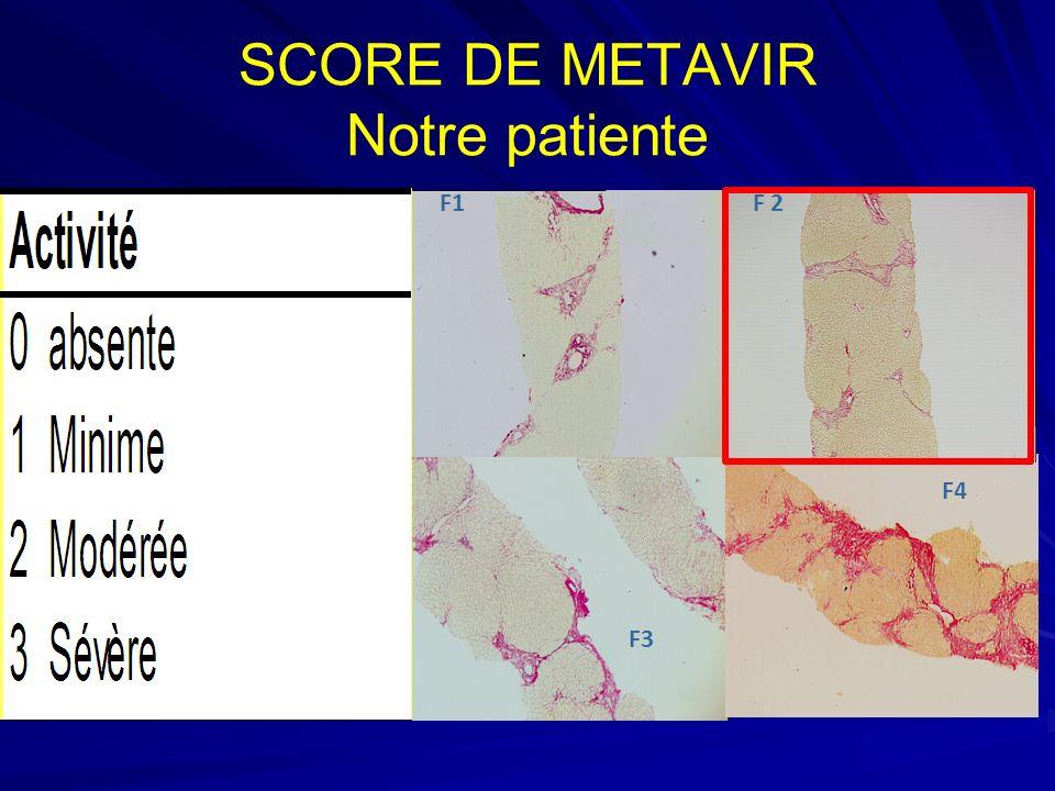 SCORE DE METAVIR Notre patiente F1 F3 F4 F 2