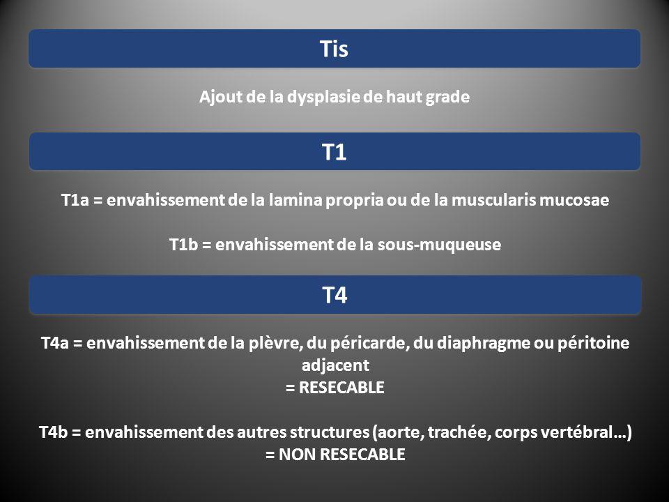 Ajout de la dysplasie de haut grade Tis T1a = envahissement de la lamina propria ou de la muscularis mucosae T1b = envahissement de la sous-muqueuse T