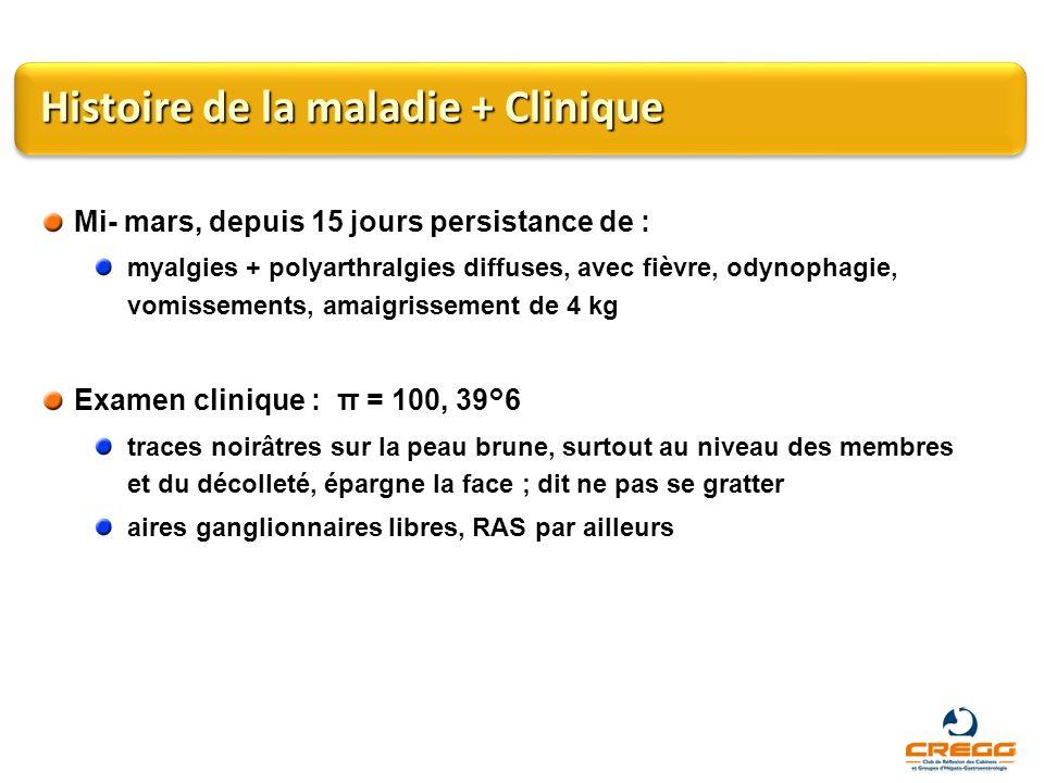 Histoire de la maladie + Clinique Mi- mars, depuis 15 jours persistance de : myalgies + polyarthralgies diffuses, avec fièvre, odynophagie, vomissemen