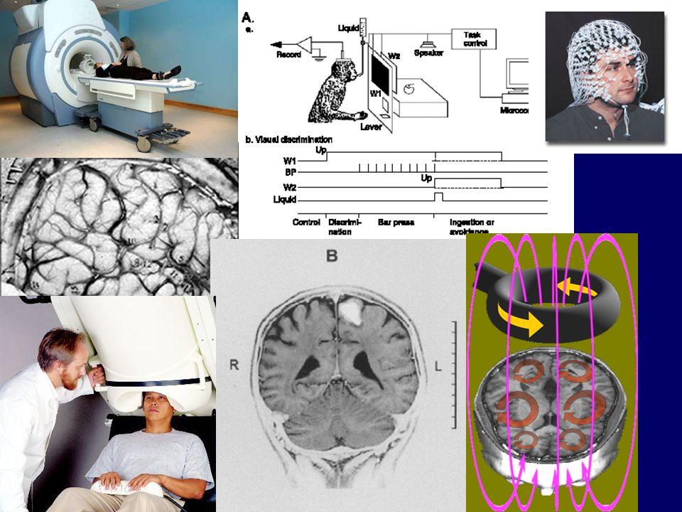 Pathologie psychobiologique de lattention Cortex préfrontal Circonvolution cingulaire Noyau caudé Cervelet