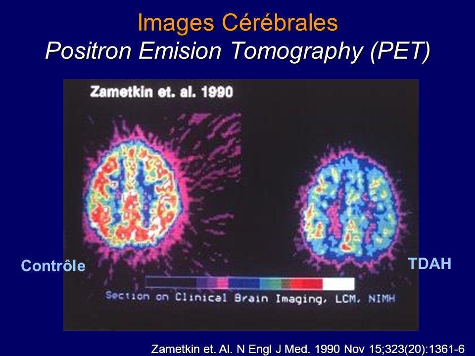 Neurobiologie du TDAH Castellanos et coll.: étude longitudinale 1991- 2001 Atteintes cérébrales rapportées –Cerveau globalement plus petit que contrôl