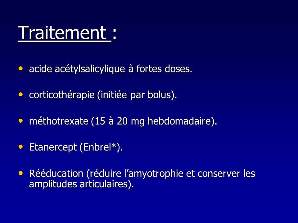 Traitement : acide acétylsalicylique à fortes doses. acide acétylsalicylique à fortes doses. corticothérapie (initiée par bolus). corticothérapie (ini