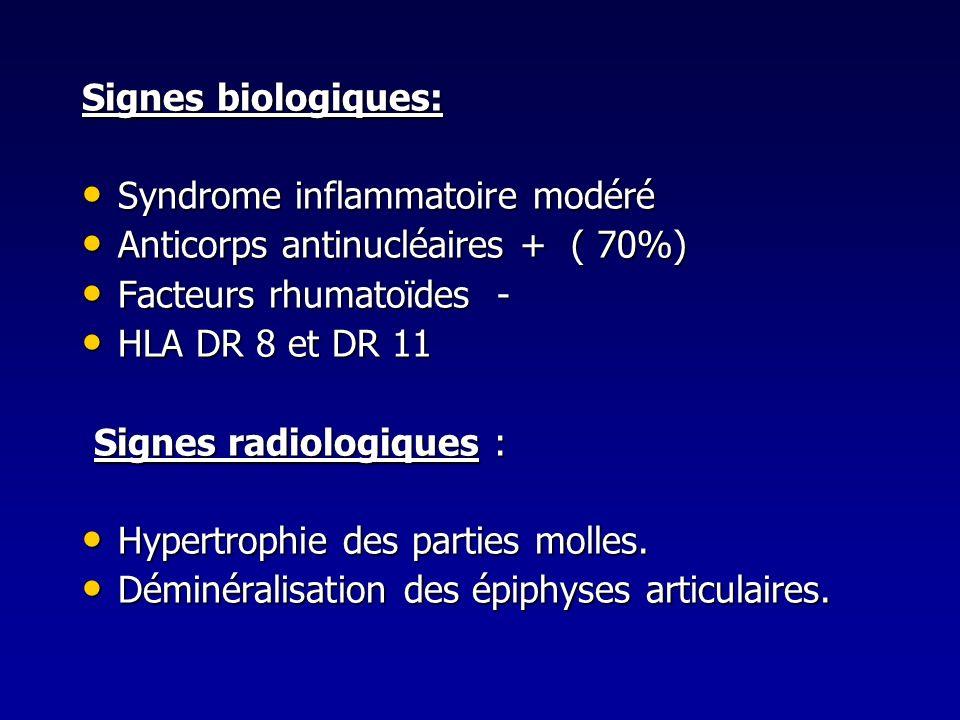 Signes biologiques: Syndrome inflammatoire modéré Syndrome inflammatoire modéré Anticorps antinucléaires + ( 70%) Anticorps antinucléaires + ( 70%) Fa